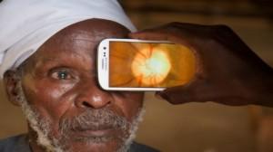 ابتكار تطبيق جديد بالهاتف الذكي يُشخص أمراض العيون
