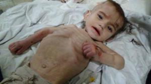 استشهاد طفل في مخيم اليرموك