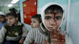 اصابة اطفال في غزة