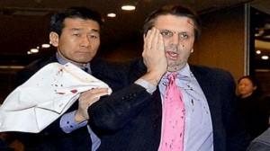 طعن السفير الأمريكي في كوريا الجنوبية بالوجه