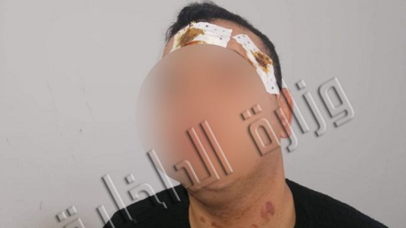 العالية – بنزرت / إيقاف شخص من أجل الإعتداء على عوني أمن